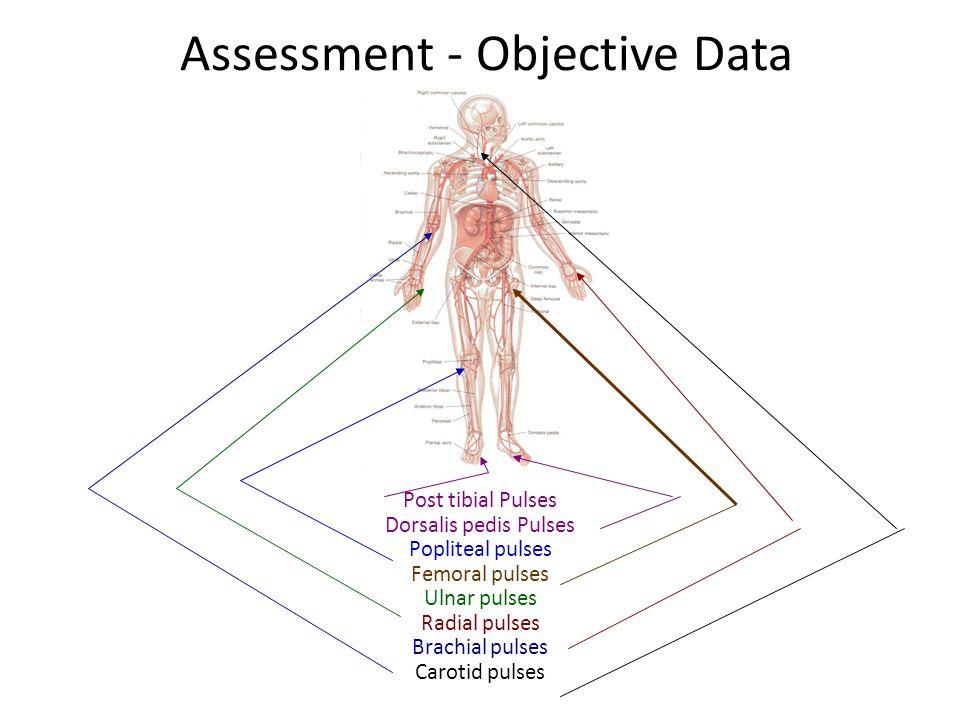 Assessment - Objective Data Post tibial Pulses Dorsalis pedis Pulses Popliteal pulses Femoral pulses Ulnar pulses Radial pulses Brachial pulses Caroti