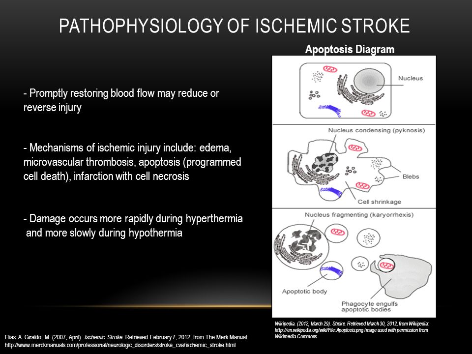 PATHOPHYSIOLOGY OF ISCHEMIC STROKE - Promptly restoring blood flow may reduce or reverse injury - Damage occurs more rapidly during hyperthermia and more slowly during hypothermia Elias A.