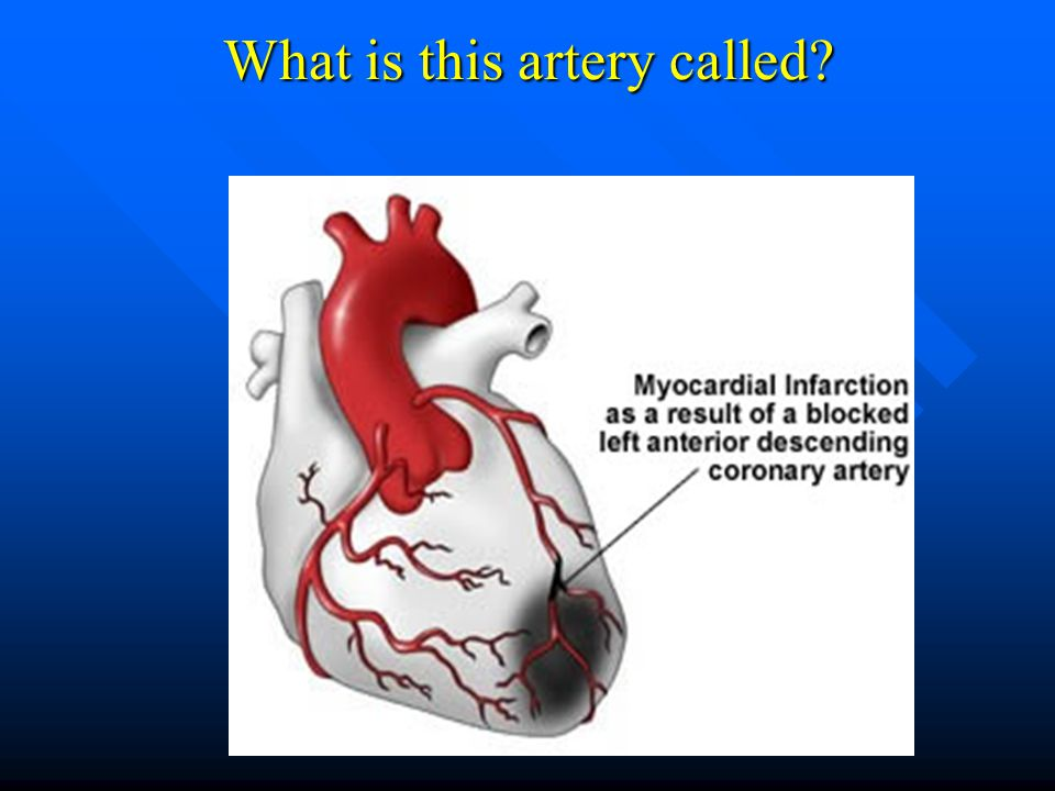 What is this artery called