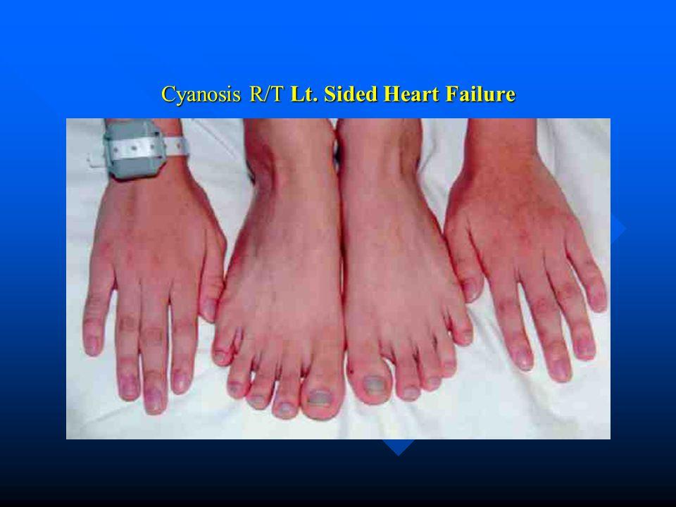 Cyanosis R/T Lt. Sided Heart Failure