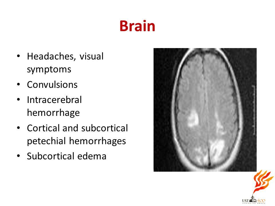 Brain Headaches, visual symptoms Convulsions Intracerebral hemorrhage Cortical and subcortical petechial hemorrhages Subcortical edema