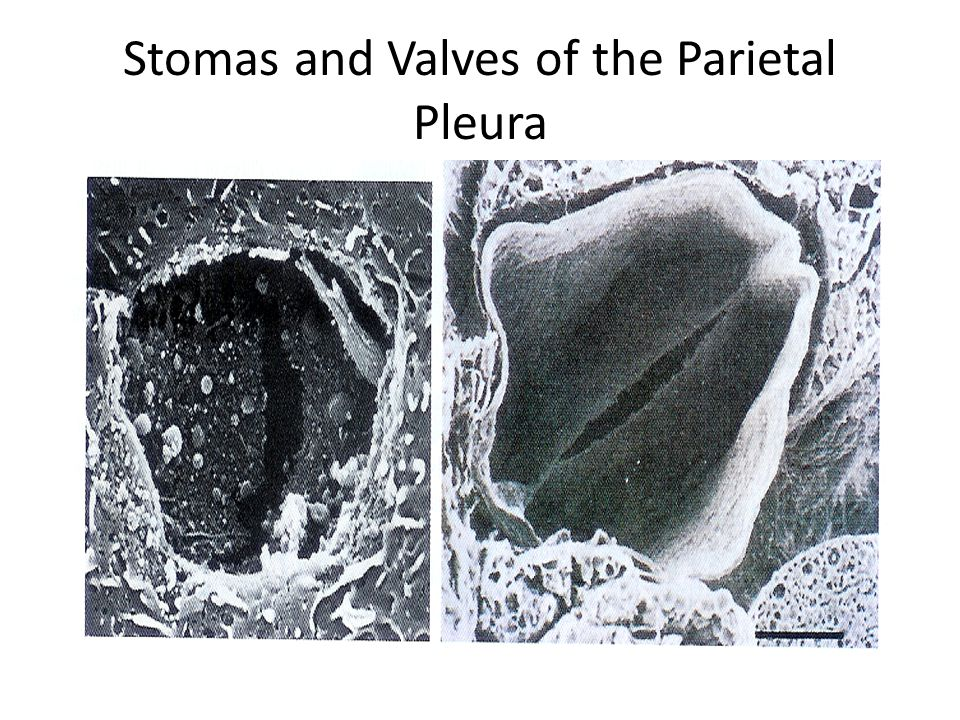 References Pleural Diseases.Richard W. Light.