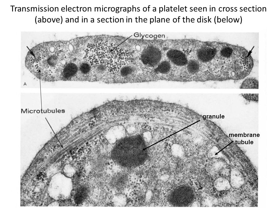 Transmission electron micrographs of a platelet seen in cross section (above) and in a section in the plane of the disk (below) granule membrane tubule