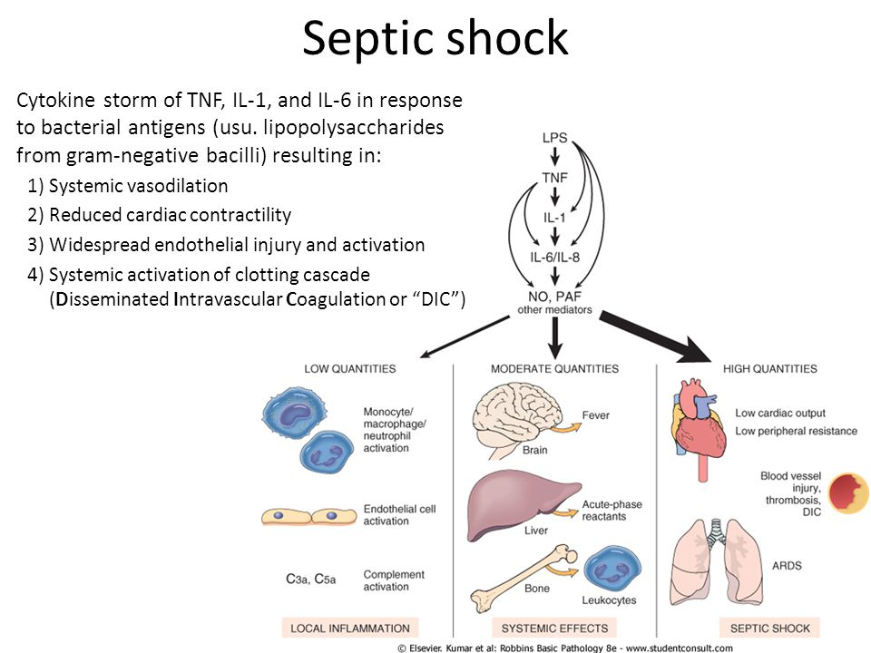 Septic shock Cytokine storm of TNF, IL-1, and IL-6 in response to bacterial antigens (usu. lipopolysaccharides from gram-negative bacilli) resulting i