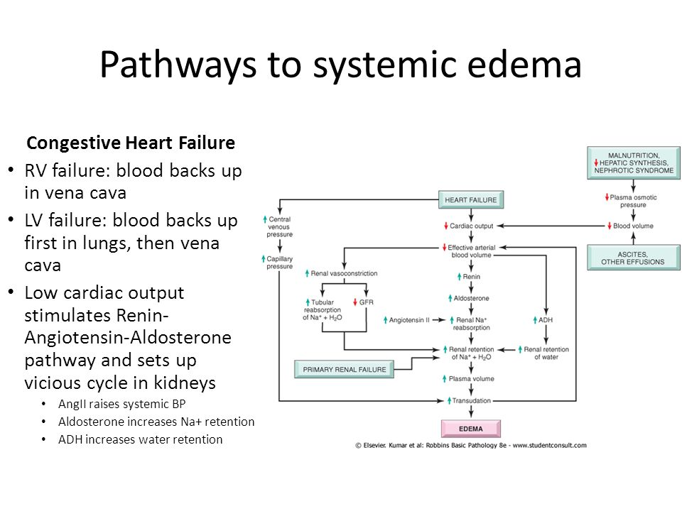 Pathways to systemic edema Congestive Heart Failure RV failure: blood backs up in vena cava LV failure: blood backs up first in lungs, then vena cava