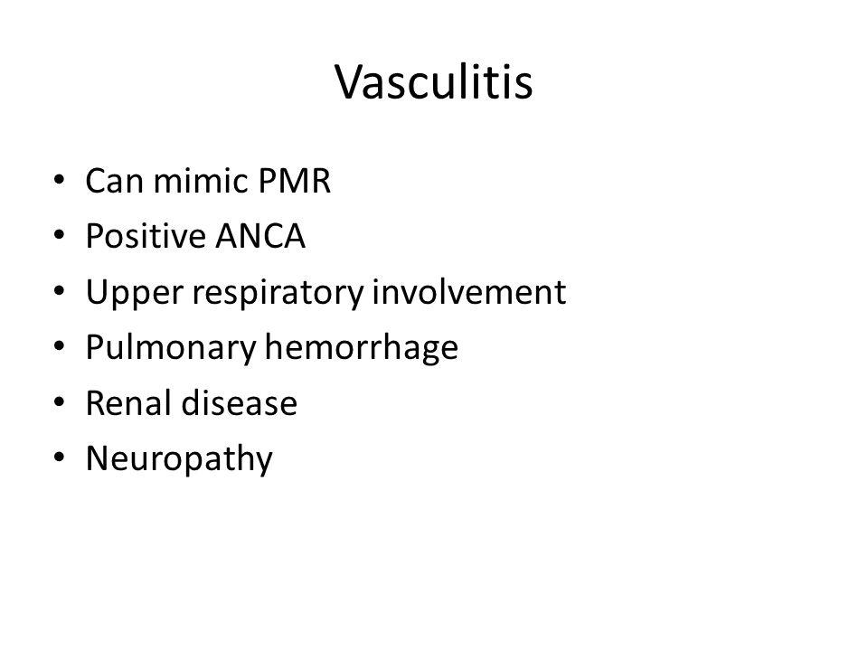 Vasculitis Can mimic PMR Positive ANCA Upper respiratory involvement Pulmonary hemorrhage Renal disease Neuropathy