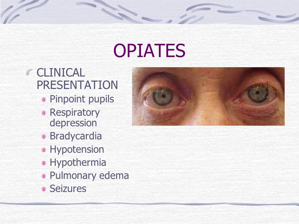 OPIATES CLINICAL PRESENTATION Pinpoint pupils Respiratory depression Bradycardia Hypotension Hypothermia Pulmonary edema Seizures