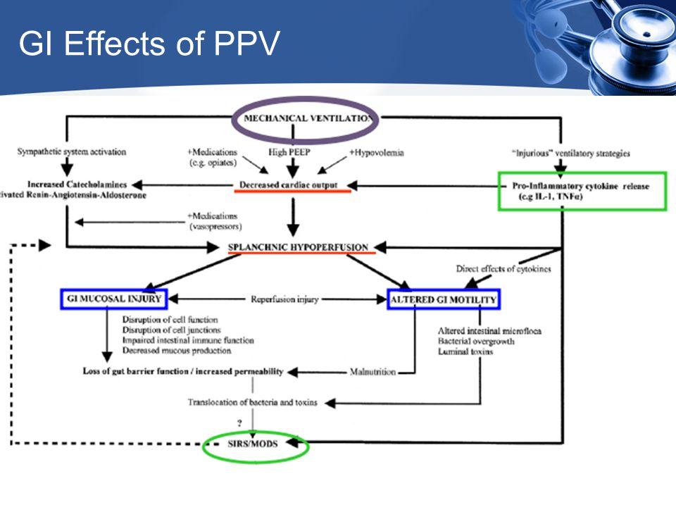 GI Effects of PPV www.icareunit.com