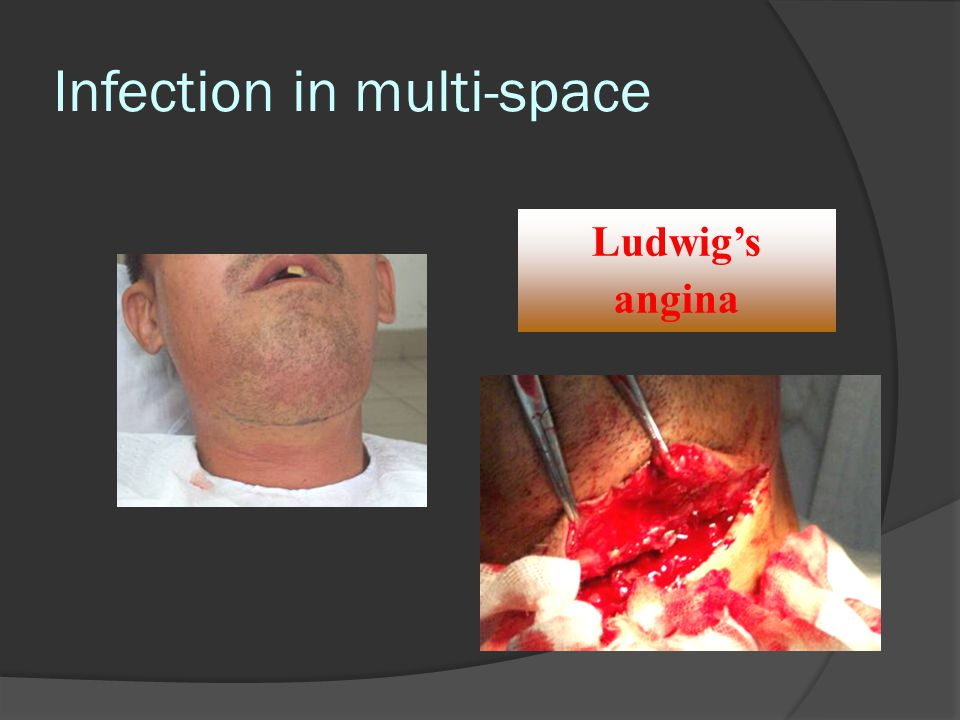 Infection in multi-space Ludwig's angina