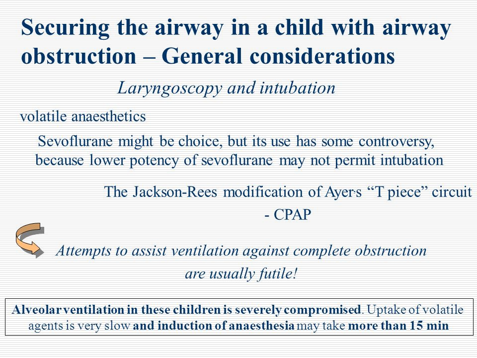 Securing the airway in a child with airway obstruction – General considerations Laryngoscopy and intubation Sevoflurane might be choice, but its use h