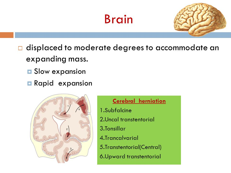 Brain  displaced to moderate degrees to accommodate an expanding mass.  Slow expansion  Rapid expansion Cerebral herniation 1.Subfalcine 2.Uncal tr
