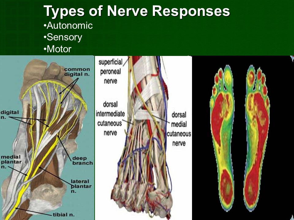 Types of Nerve Responses Autonomic Sensory Motor
