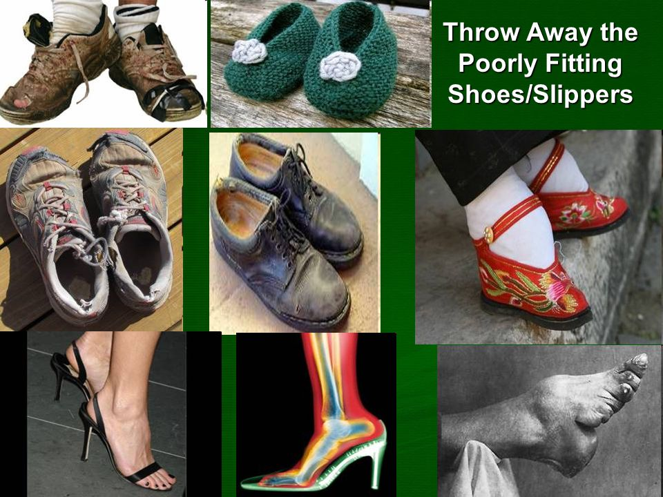 Throw Away the Poorly Fitting Shoes/Slippers