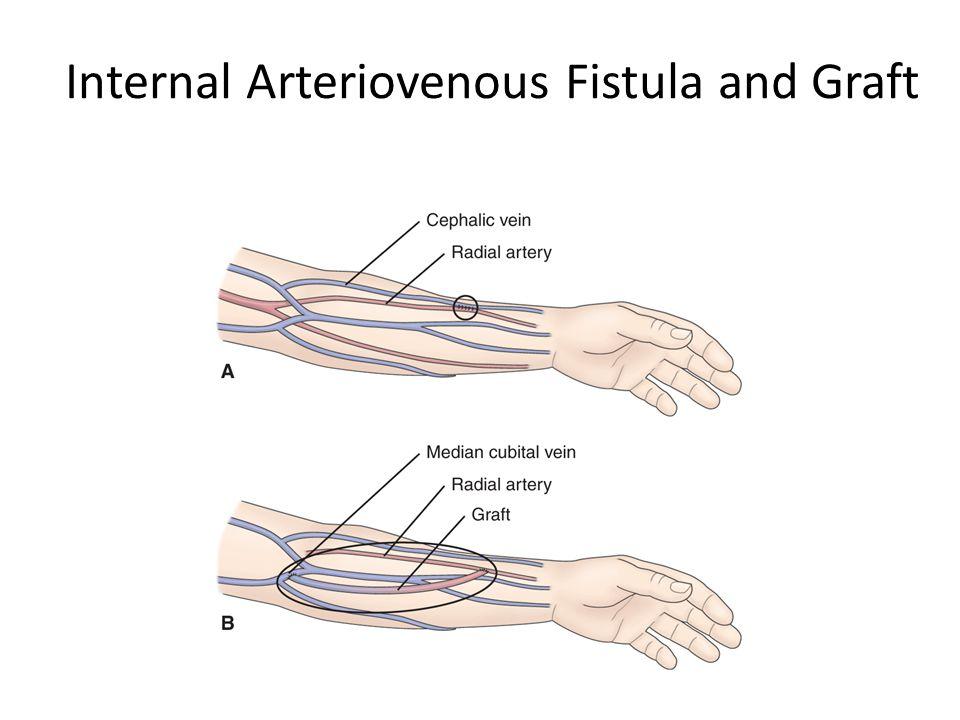 Internal Arteriovenous Fistula and Graft