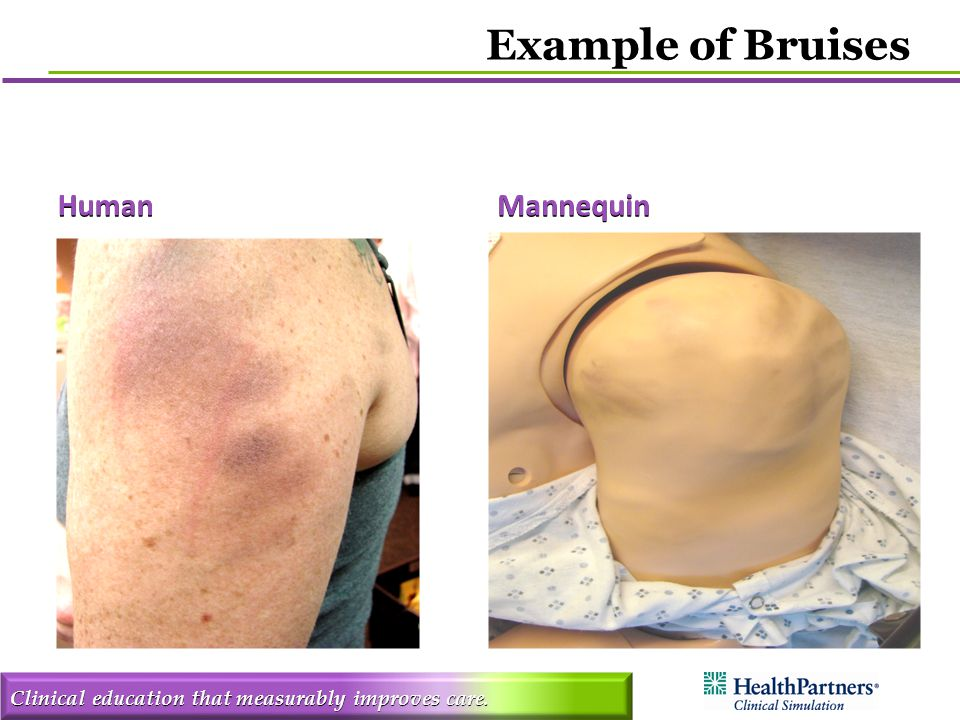 Clinical education that measurably improves care. HumanMannequin Example of Bruises