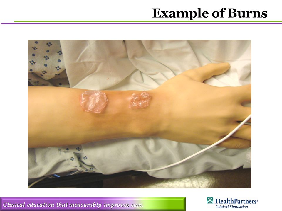 Clinical education that measurably improves care. Example of Burns