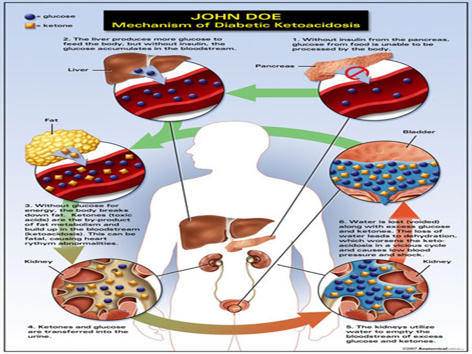 What Does DKA Look Like.
