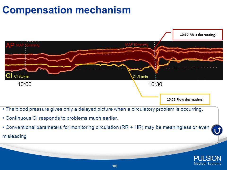 102 Standard Monitoring Invasive blood pressure monitoring A.