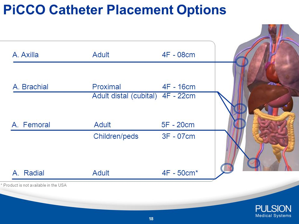 17 For advanced hemodynamic monitoring with the PiCCO-Technology Temperature sensor at the catheter tip for transpulmonary thermodilution Pressure lumen for arterial pressure measurement For use with PiCCO 2 PiCCO plus Philips PiCCO technology module and Draeger Infinity ® PiCCO SmartPod ®.