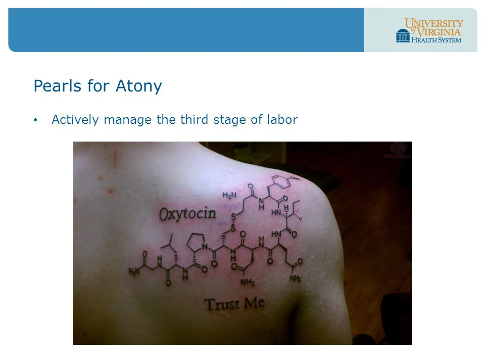 Actively manage the third stage of labor Pearls for Atony