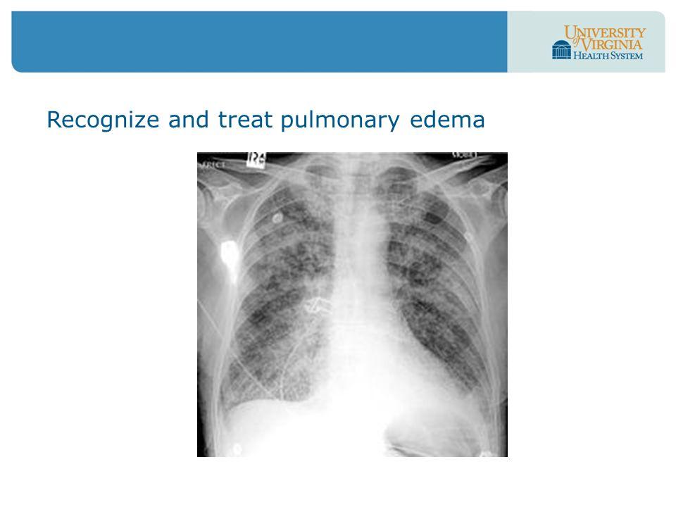 Recognize and treat pulmonary edema