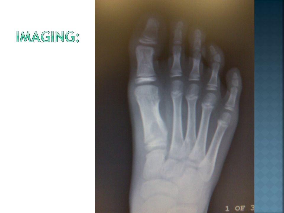  Rare, benign, cartilage-forming tumor of the tubular long bones.