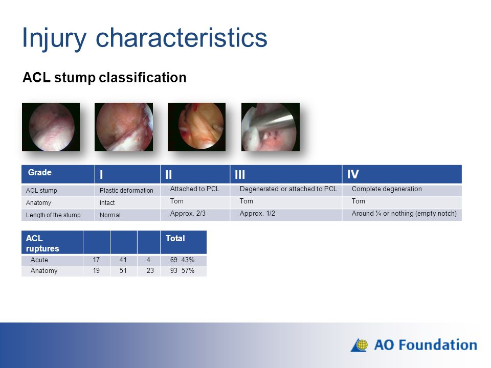 Injury characteristics ACL stump classification Grade IIIIIIIV ACL stumpPlastic deformation Attached to PCLDegenerated or attached to PCLComplete dege