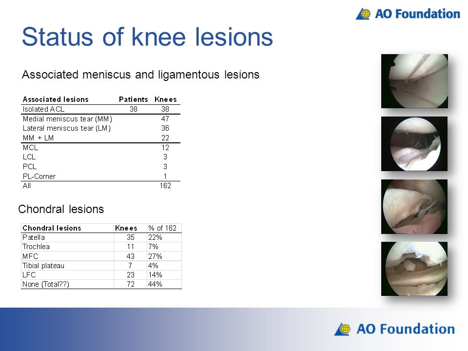 Status of knee lesions Chondral lesions Associated meniscus and ligamentous lesions