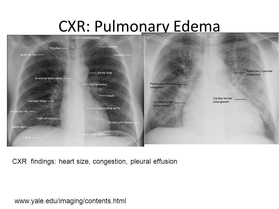 CXR: Pulmonary Edema www.yale.edu/imaging/contents.html CXR findings: heart size, congestion, pleural effusion