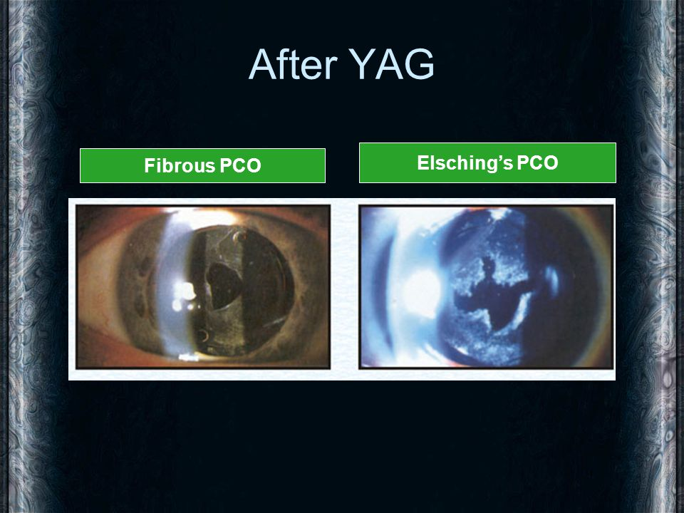 After YAG Fibrous PCO Elsching's PCO