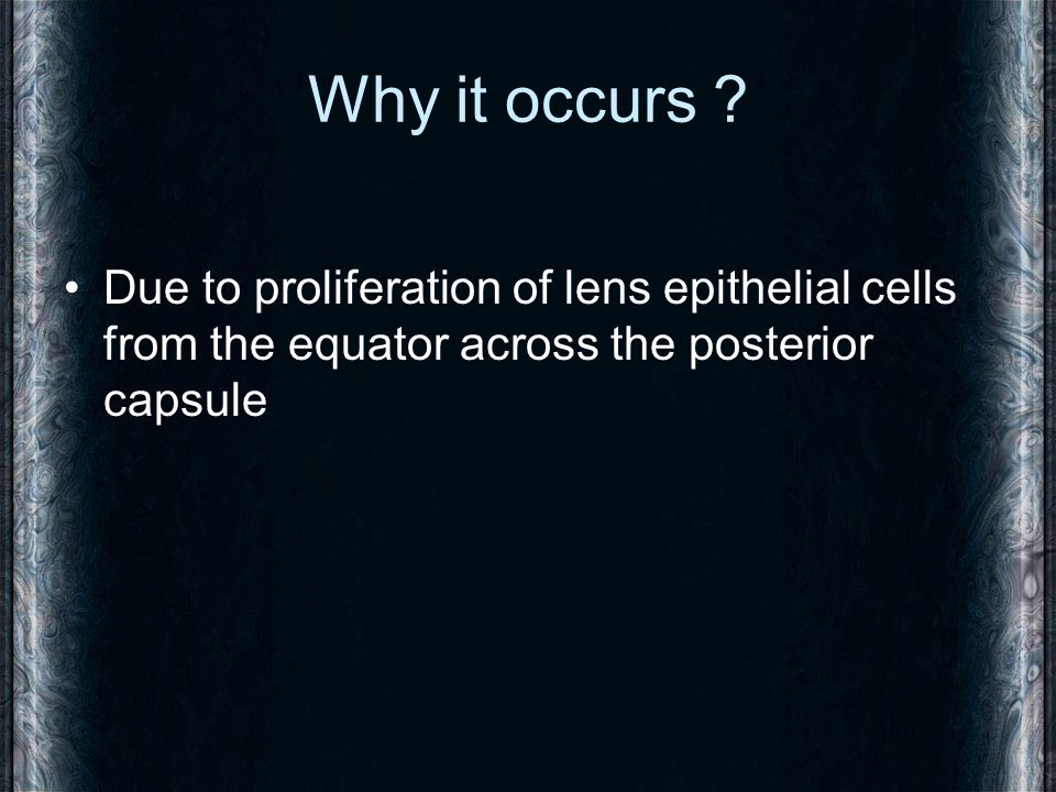 Why it occurs ? Due to proliferation of lens epithelial cells from the equator across the posterior capsule