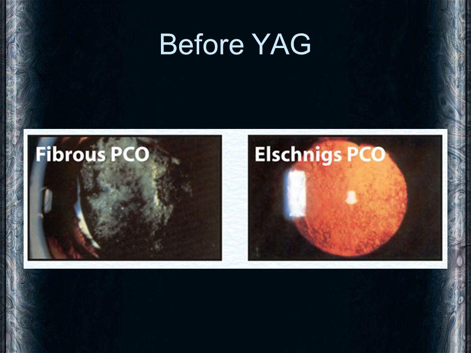 Before YAG