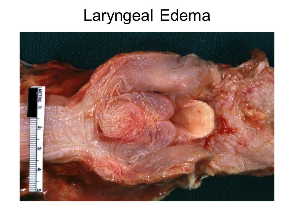 Laryngeal Edema