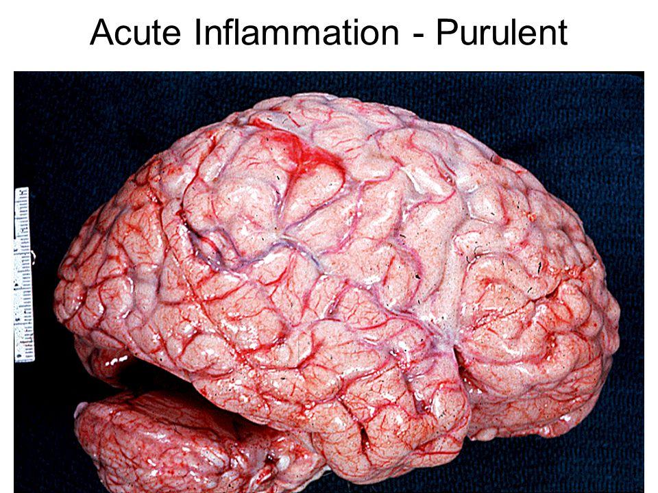 Acute Inflammation - Purulent