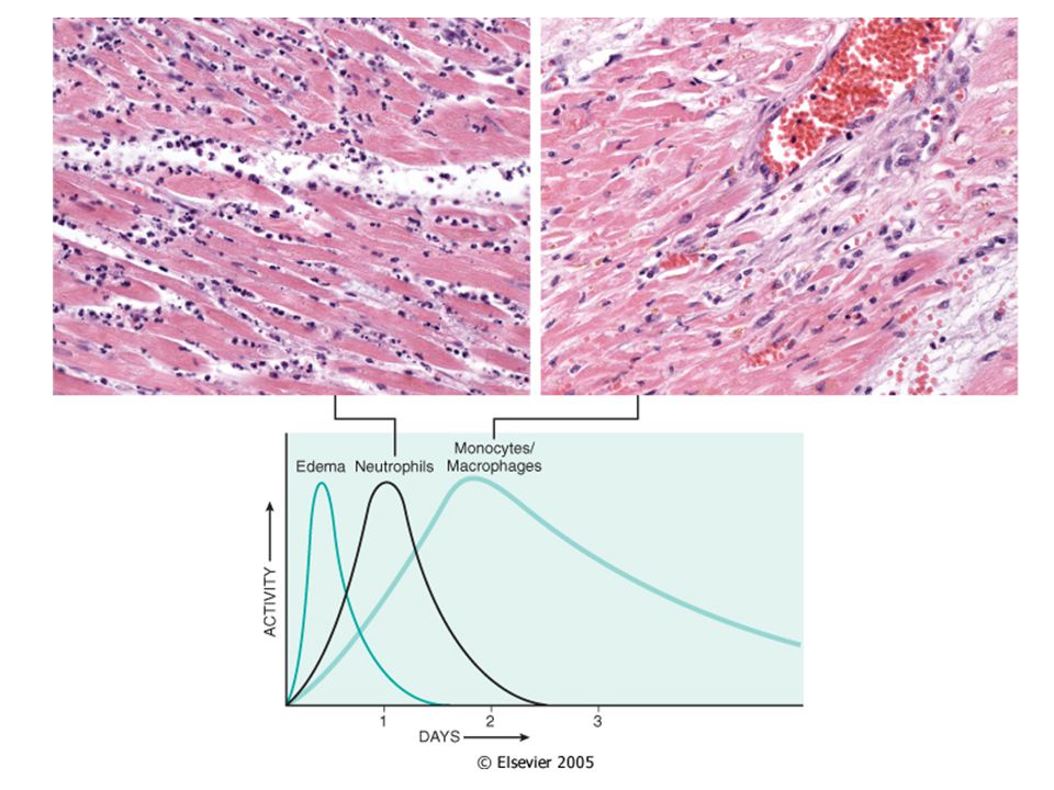 Neutrophils Polymorphonuclear Lekocytes (PMN) Margination –Pavementing Adhesion –Complementary adhesion molecules on leukocytes and endothelial cells