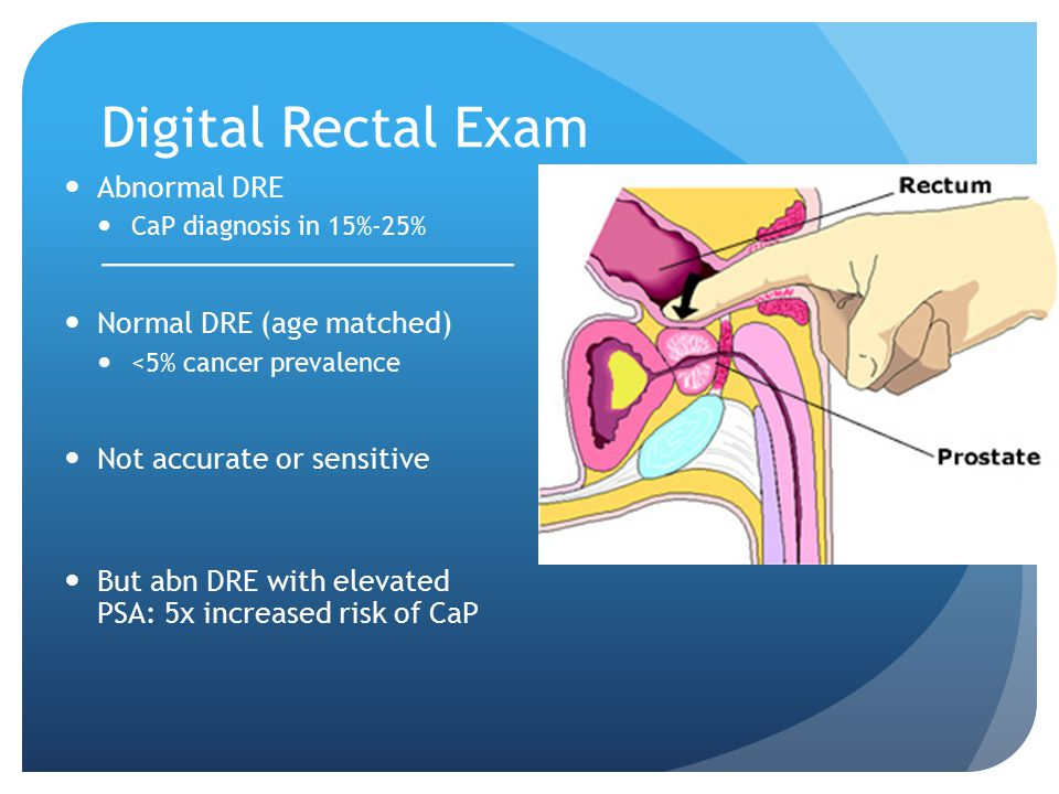 Digital Rectal Exam Abnormal DRE CaP diagnosis in 15%-25% Normal DRE (age matched) <5% cancer prevalence Not accurate or sensitive But abn DRE with el