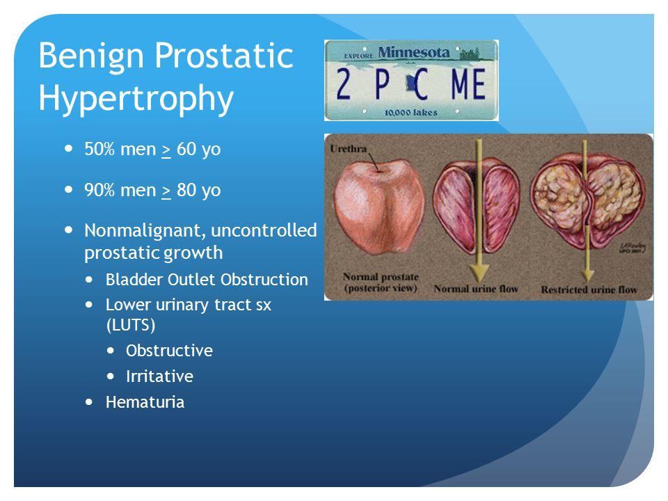 Benign Prostatic Hypertrophy 50% men > 60 yo 90% men > 80 yo Nonmalignant, uncontrolled prostatic growth Bladder Outlet Obstruction Lower urinary trac