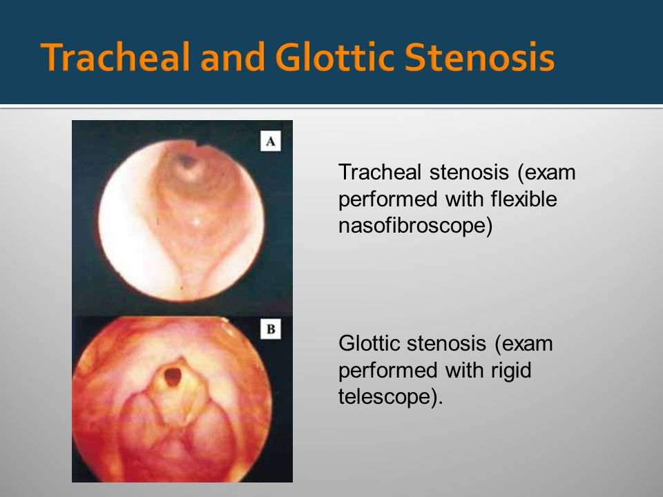 Tracheal stenosis (exam performed with flexible nasofibroscope) Glottic stenosis (exam performed with rigid telescope).