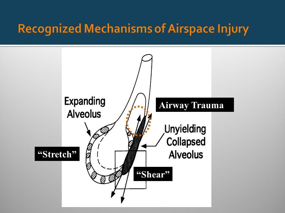 Stretch Shear Airway Trauma