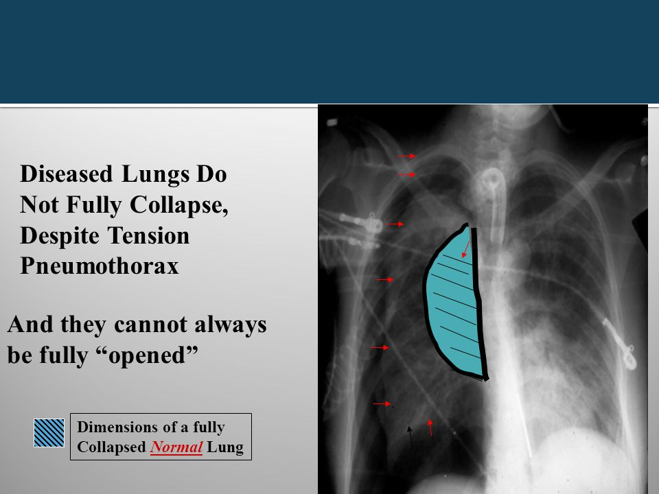 """Diseased Lungs Do Not Fully Collapse, Despite Tension Pneumothorax And they cannot always be fully """"opened"""" Dimensions of a fully Collapsed Normal Lun"""
