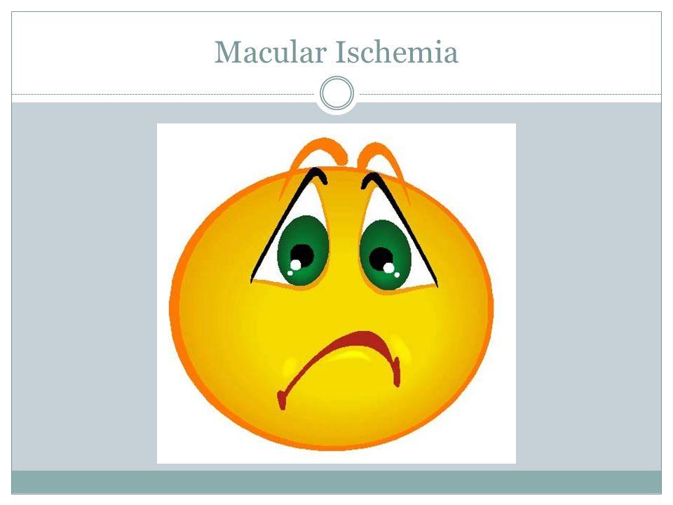 Macular Ischemia