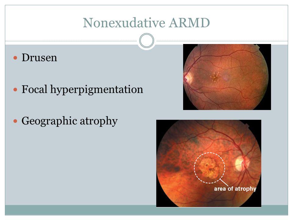 Nonexudative ARMD Drusen Focal hyperpigmentation Geographic atrophy