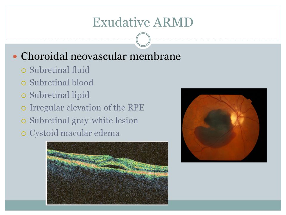 Exudative ARMD Choroidal neovascular membrane  Subretinal fluid  Subretinal blood  Subretinal lipid  Irregular elevation of the RPE  Subretinal gray-white lesion  Cystoid macular edema