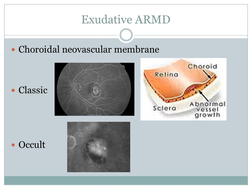 Exudative ARMD Choroidal neovascular membrane Classic Occult