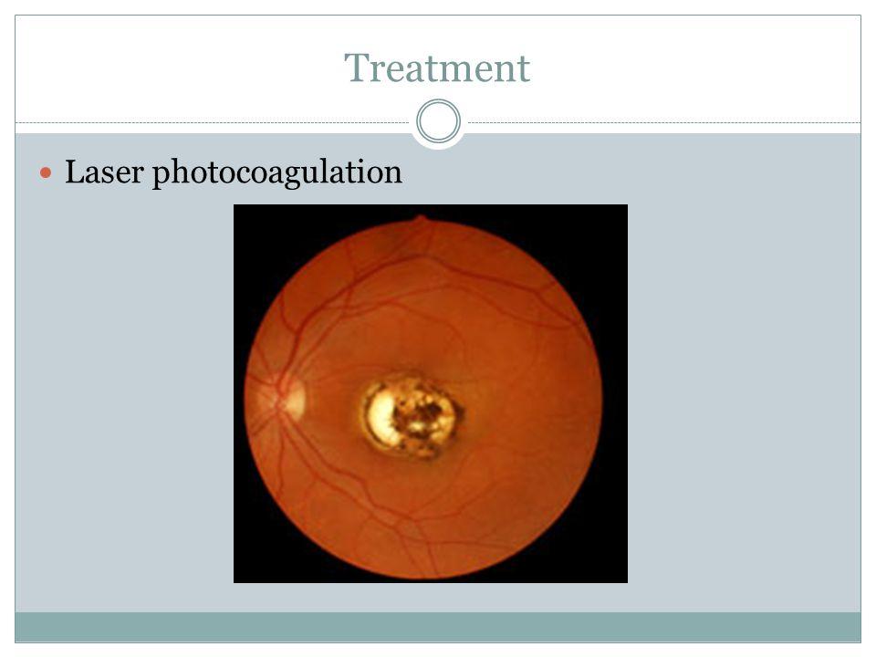 Treatment Laser photocoagulation