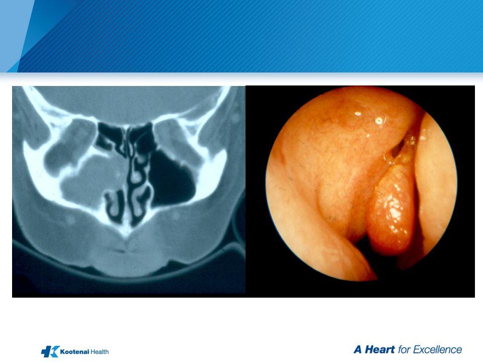 Rhinosinusitis (Maxillary-Ethmoid)