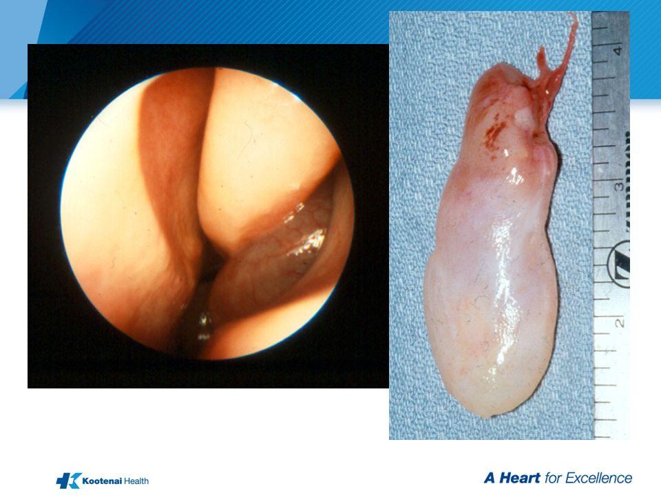 Nasal Polyps (Antrochoanal)