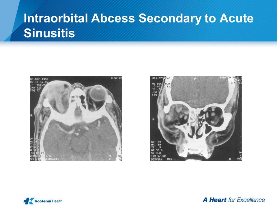 Intraorbital Abcess Secondary to Acute Sinusitis