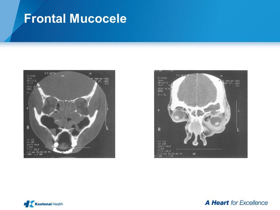 Frontal Mucocele