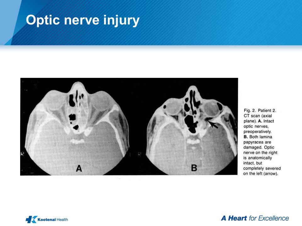 Optic nerve injury